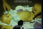 Guatemala: Un galeno muestra en la foto de un nino los sintomas que afectan por Retrovirus .  � Jesus Alfonso/LATINPHOTO.org