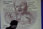 Guatemala: Un galeno muestra los sintomas que afectan a un nino cuando es afectado por el Retrovirus .  � Jesus Alfonso/LATINPHOTO.org