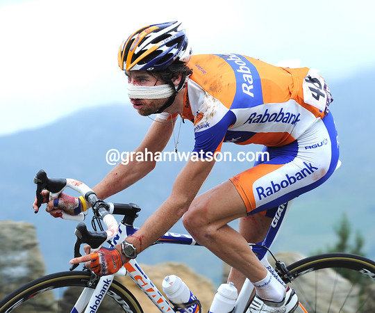 Laurens Ten Dam is anything but realxed - he's broken his nose in a nasty fall off the Agnes climb...