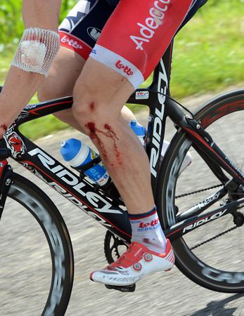 Andre Greipel has fallen twice today, he has the scars of the first crash quite visible...