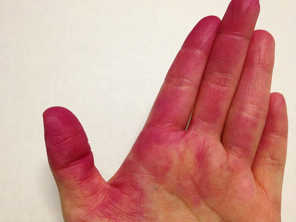 Red dragon fruit stained my hands and it didn't come off until several washings later. Imagine what it does to your insides. It's good for health. We're selling it wholesale.