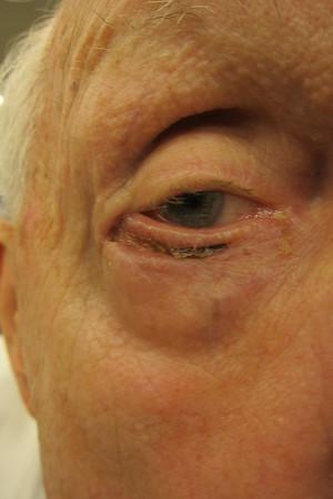 Alan Hill Right Eye