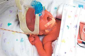 Jade was born at 11:47 a.m. She weighed 2 pounds, 6.5 ounces and measured 14.5 inches.