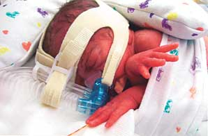 Leighton, a boy, was born at 11:48 a.m. He weighed 2 pounds, 6.5 ounces and measured 15 inches.