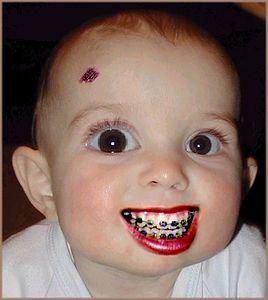 baby braces