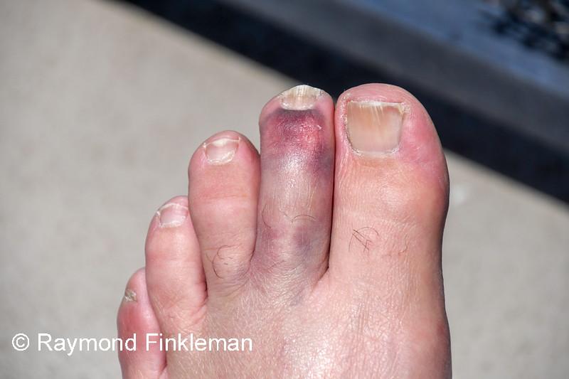 Broken toe.