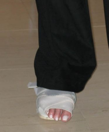 Arlene broke her toe.