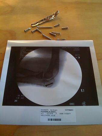 Broken Arm 2011