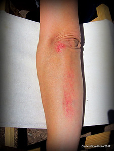 Julie's major OWIE, after a tree jumped up and bit her on Fisher Mesa, Utah.