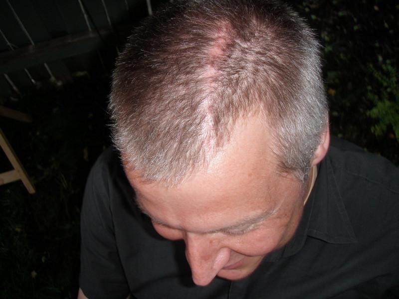 That's a darn nice scar!