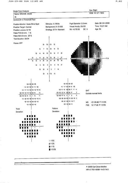 Right Eye Vision Test 6/24/08
