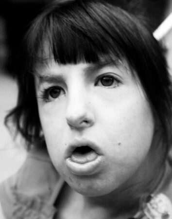Morghan, age 12<br /> Trisomy 18