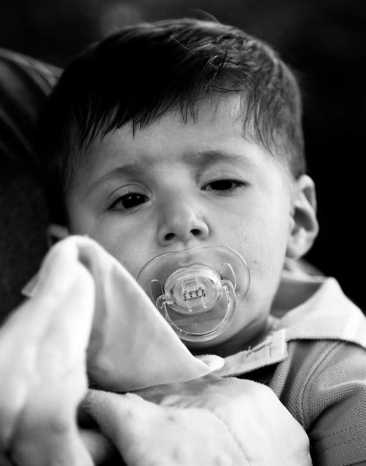 Phillip, age 1<br /> Trisomy 9
