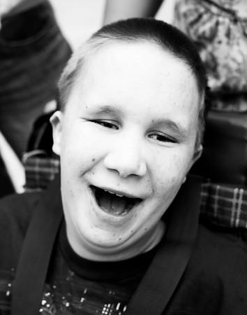 Devon, age 14<br /> Trisomy 13/05 Translocation