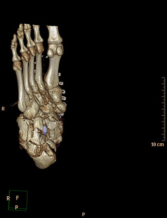 CT 3D RT ANKLE JOINT Day 4 With K-Wires
