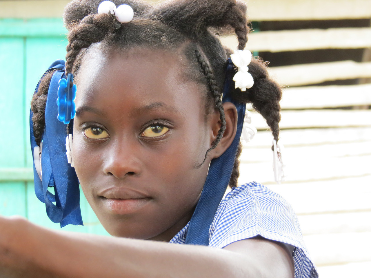 A beautiful kid.  I wonder what the yellow eyes mean -not good is my guess.