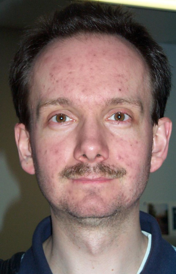 """This tutorial shows how to quickly remove multiple skin blemishes using channels and masks in Photoshop with absolutely minimal usage of the Healing Brush or the Clone Stamp.  Here is a picture of a man with a serious acne outbreak. I'm going to use it as an example in this tutorial. <font color=""""#66FF00""""><h3> STEP 1</h3></font> Create a copy of the """"Background"""" layer. Take a look at all of its three RGB channels.   Photoshop Elements users can find information on how to separate an image into color channels here: <a href=""""http://www.webreference.com/graphics/elements3/"""" target=""""_blank"""">http://www.webreference.com/graphics/elements3.</a>"""