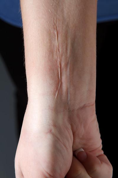 Robbins_wrist-0074