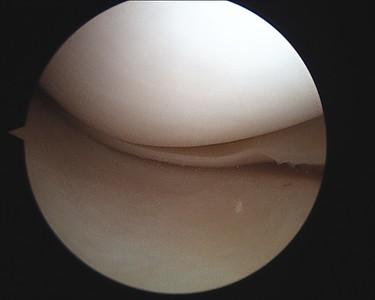 KneeSurgery