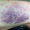 Left thigh, Thursday night