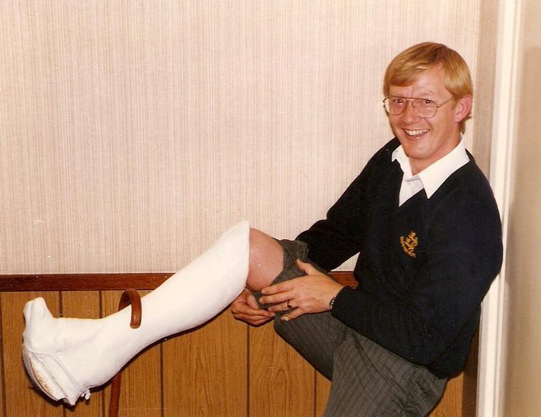 Steve Watson's broken leg!