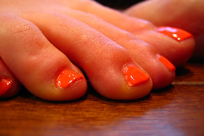 Jaimie's toenails on a later date