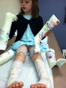 Kaitlyns first set of casts come off
