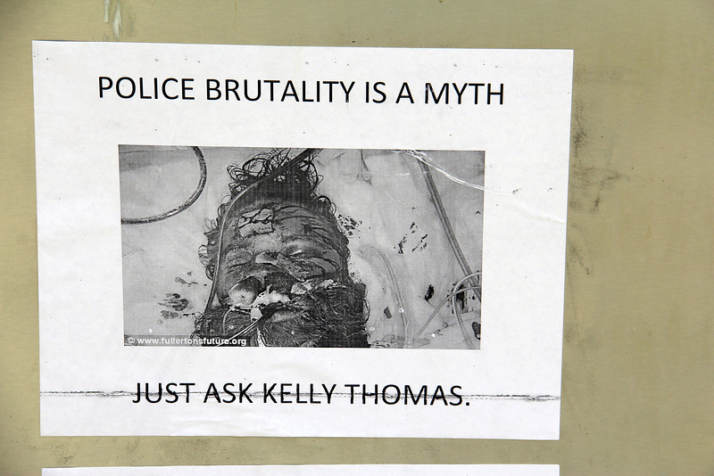 Kelly Thomas, a 37-year-old homeless man who was beaten to death by six Fullerton police officers earlier this month. (hospital photo- found posted at the train depot) All the details and facts are still not known.