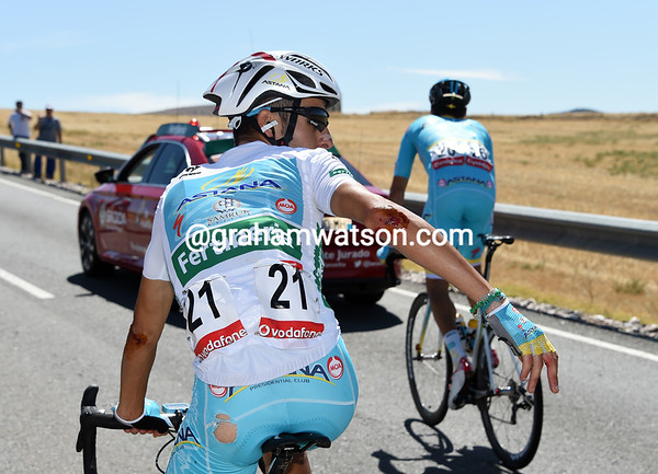 Fabio Aru shows the scars of a crash with Dumoulin and others a few minutes later..!