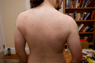 My mosquito bites after orienteering at Pawtuckaway State Park.  Yes, they bit through my shirt, despite bug spray.