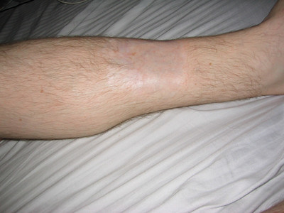 Left leg.. where skin grafts went to.. Nice eh? I really know how to take care of myself...