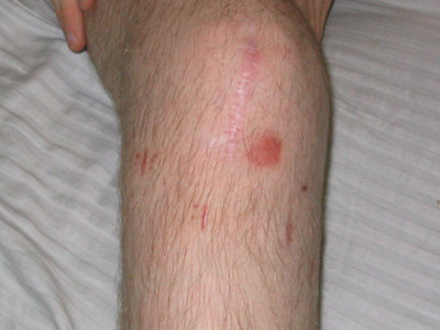 knee removal and a touch of old road rash.. see other pics for why knee was popped off