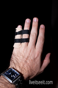 March 17. Buddies After an appointment with a hospital physio in the hand clinic, I was fitted with a 'buddy splint' - a set of straps splinting my fingers together. Along with a compression sock to reduce the swelling. Verdict 4-6wks off footy then heavy strapping.