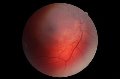 Scan of the back of my right retina, September 27, 2011