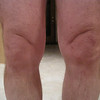 Swollen left knee the night before surgery - taken at 4:30am before going to the hospital.