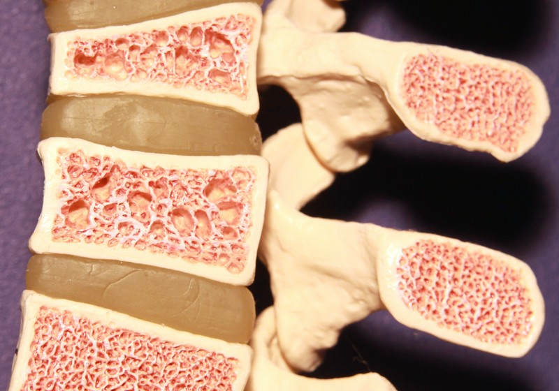 Model of spine showing porous bone marrow in case of osteoporosis