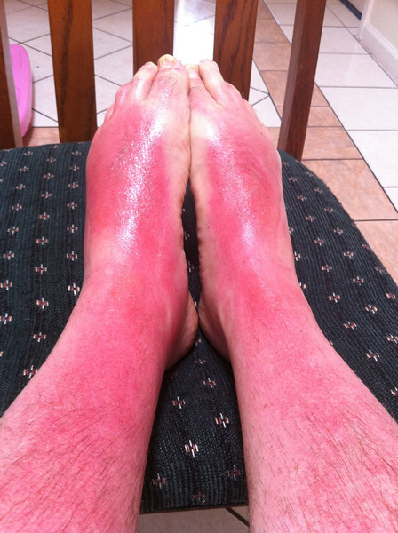 sunburn on my legs / feet after 5 days. left foot is still swollen, hurts to put pressure on it when walking. ugh.