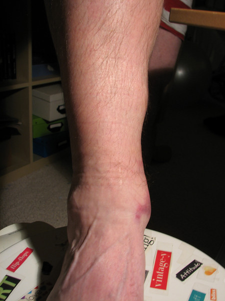 Ankle injury from Soccer