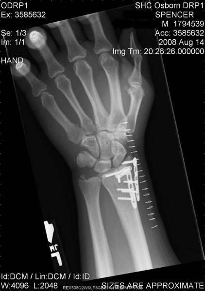 Left arm.