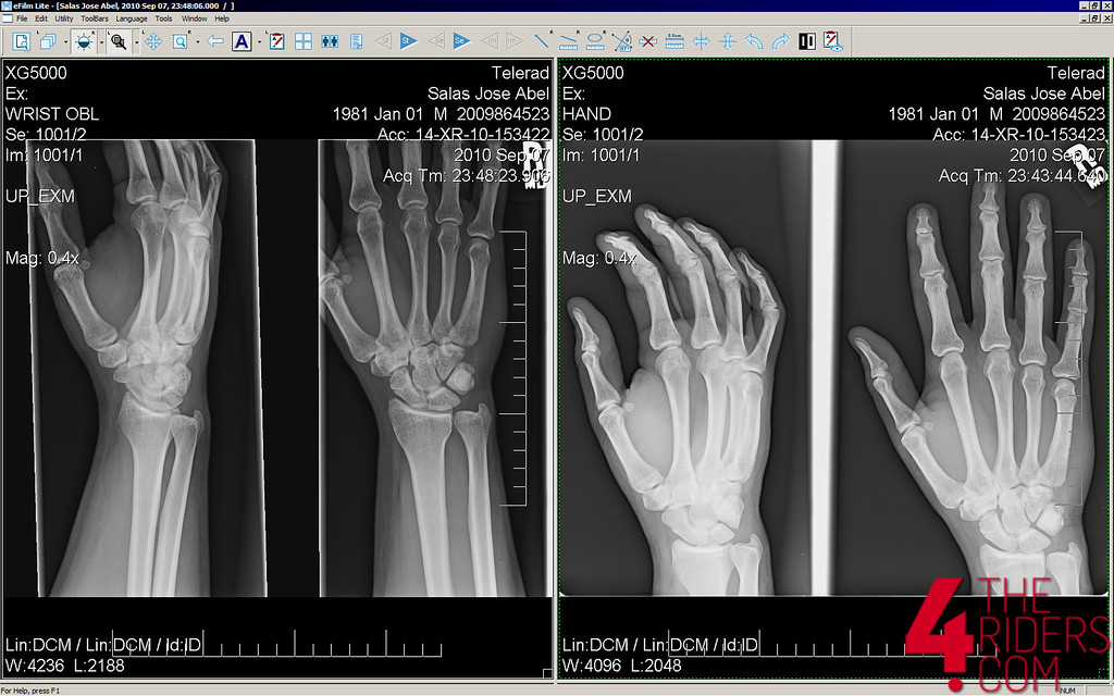 broken scaphoid x-ray