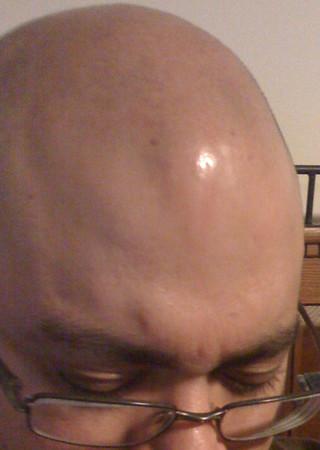Look just below the shinny spot.  Dam I got a ton of spots on my head!!