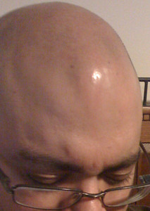 Look just below the shinny spot.  Dam I got a ton of spots on my head!!
