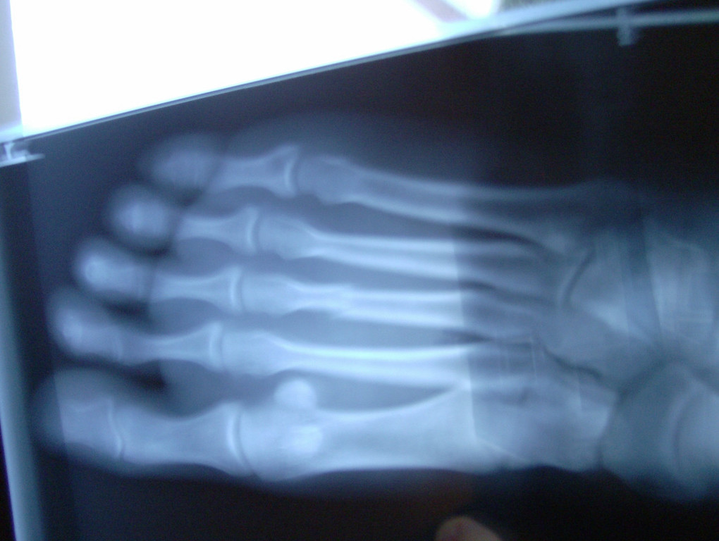 """My stupid broken foot! Nothing """"happened"""" it just hurt more & more & more. The third metatarsal is broken from a stress fracture.  Bummer :-("""