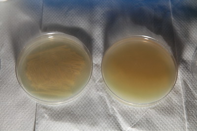 Bacterial growth after 24 hours in 37C - normal agar plate left - agar+strep right with zero growth