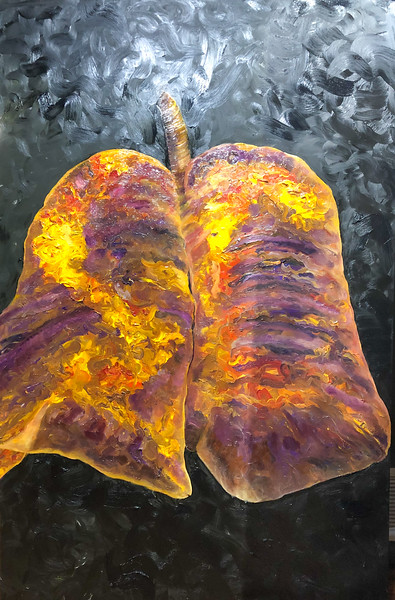 Lungs of the Covid Patient