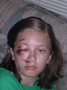 Day 2 of road rash...notice the eye is swollen shut