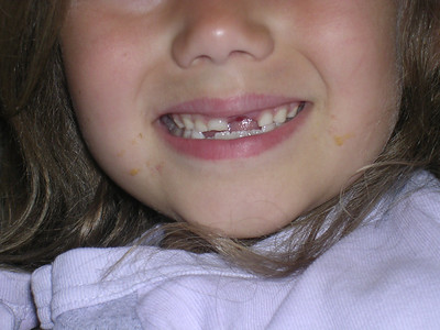 Leah lost her tooth
