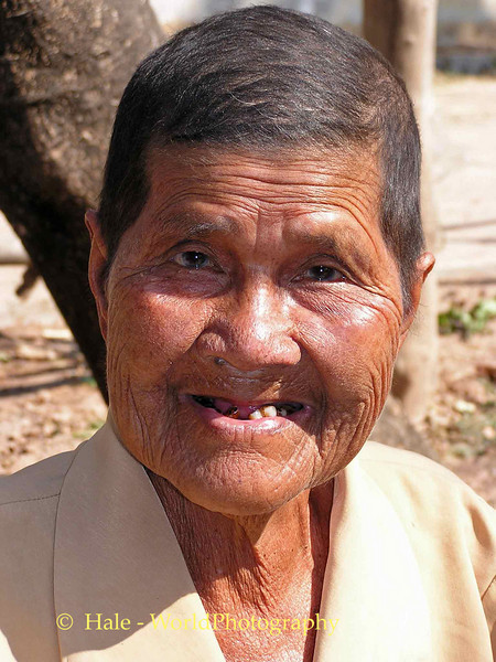 Poor Lao Loum Farm Widow Recovering From Chemotherapy Three Months Before Her Death to Cancer, Tahsang Village, Isaan region in Thailand