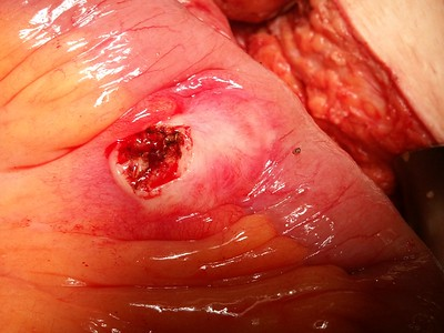 © Joseph Dougherty, MD. All rights reserved.   Metastatic cancer with unknown primary, implanted in small bowel mesentery, causing small bowel obstruction.   Carcinomatosis was present.   Specimen pictured after incisional biopsy for tissue diagnosis.