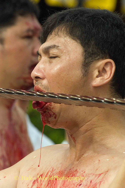 Mar Song Bleeding From Mouth